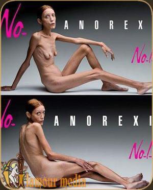 http://biblioteka.teatr-obraz.ru/files/image/anorex1.jpg